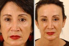 Применение масок из натуральных ингредиентов