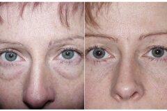 Мешки под глазами до операции