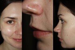 После посещения косметолога