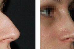 Коррекция носа горбинкой