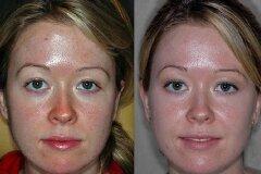 Результат ультразвуковой чистки лица