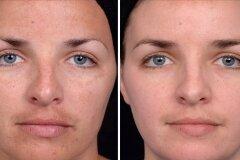 Коррекция макияжем