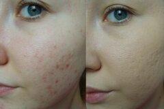 Эффект после кремов и лосьона