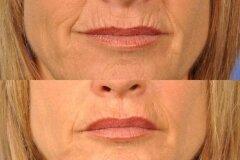 Нанесение глины только на область вокруг рта