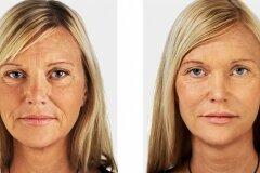 Коррекция неровности кожи