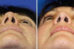 Нос до и после операции