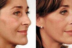 Выравнивание кожи лица