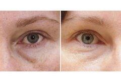 Результат процедуры вокруг глаз