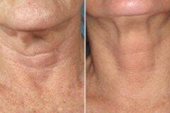 Омалаживание кожи шеи