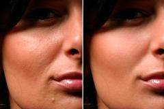 Питание кожи