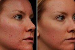 Коррекция деффектов кожи
