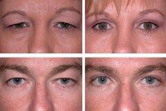 Расширение разреза глаз