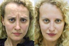 Результат двух курсов ботулотоксина