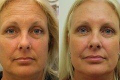 Применение масок с эффектом ботокса