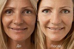 После масок с глицерином