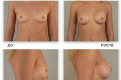 Вид груди в разных проекциях
