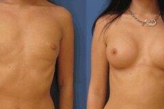 Увеличение груди на 2 размера