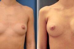 Круглая форма груди