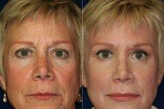 Ринопластика с подтяжкой кожи лица