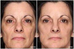 Результат применения масок