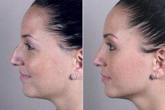 Коррекция горбинки на носу