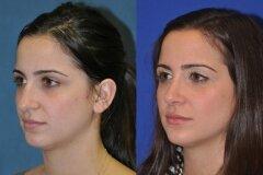 Коррекция крыльев носа