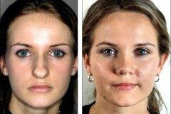 Изменение кончика носа