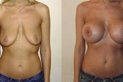 Круглые импланты
