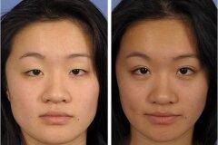 Коррекция азиатских глаз