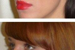 "Косметическое исправление ""горбинки"" носа"