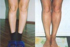 Коррекция коленей и голеней