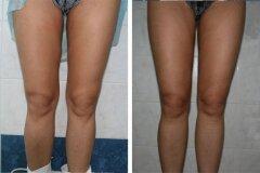 Результат откачки жира с колен