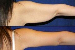 Липосакция подмышек и части руки