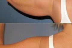 Коррекция задней части плеча