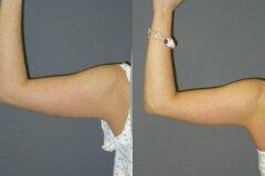 Липосакция плеча