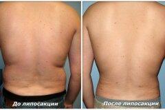 Вид спины до и после операции