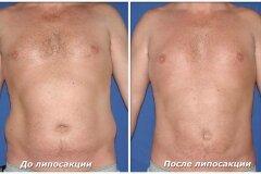 Результат процедуры на животе