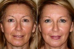 Результат применения масок с маслом льна