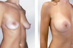 До и после операции