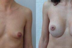 Увеличение груди с нулевого размера
