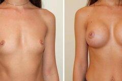 Результат маммопластика