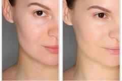 Результат применения магазинных масок