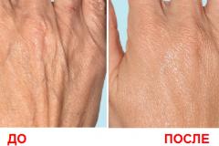 Мезотерапия кистей рук