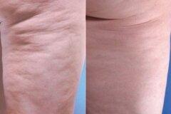 Мезотерапия от похудения