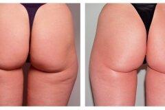 Повышение эластичности кожи ягодиц
