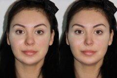 Коррекция носовой перегородки