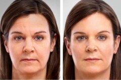 Результат от применения масок