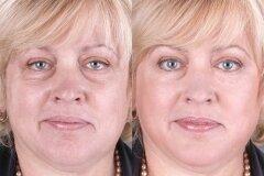 Результат после процедур в косметическом салоне