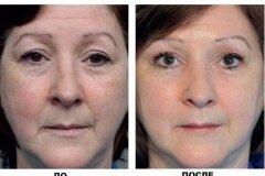 Результат применения мыла и масок