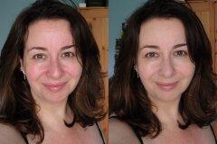 Результат работы косметолога